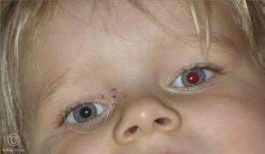 Rote-Augen-Korrektur